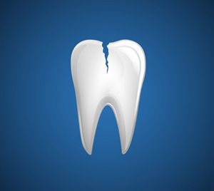 A cracked tooth in Princeton, NJ