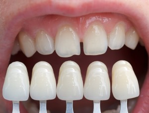 Porcelain Veneers in Princeton, New Jersey
