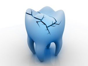 Cracked Tooth Repair in New Jersey