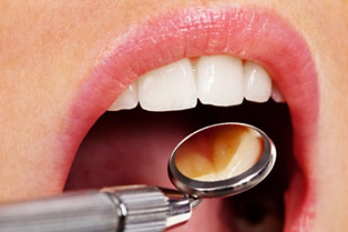 Dental Examination in New Jersey